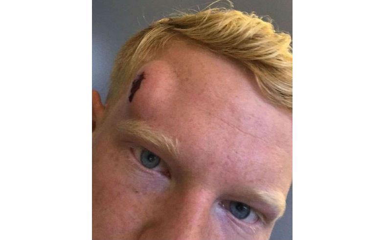Han maste ha fatt en golfboll i huvudet